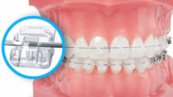 Tất tần tật những điều cần biết về niềng răng mắc cài pha lê