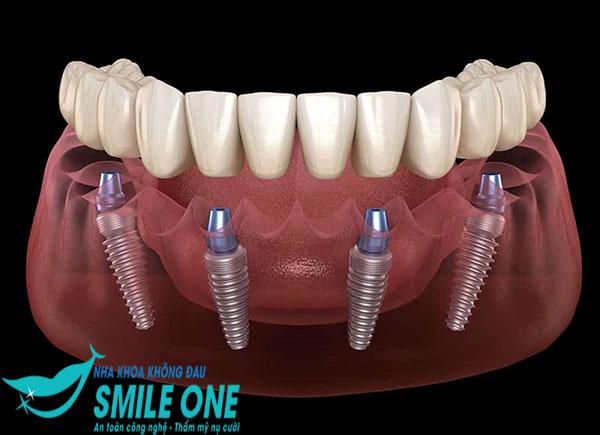 Xem ngay] Kỹ thuật cấy ghép Implant tức thì tiên tiến, hiệu quả