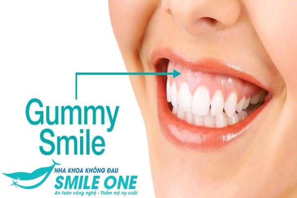Cười hở lợi cách khắc phục như thế nào? | Nha Khoa Smile One