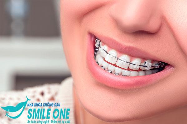 Giải đáp thắc mắc: Niềng răng 30 tuổi có hiệu quả không?