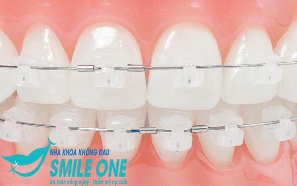 Niềng răng mắc cài nào tốt? Ưu, nhược điểm của từng loại là gì?