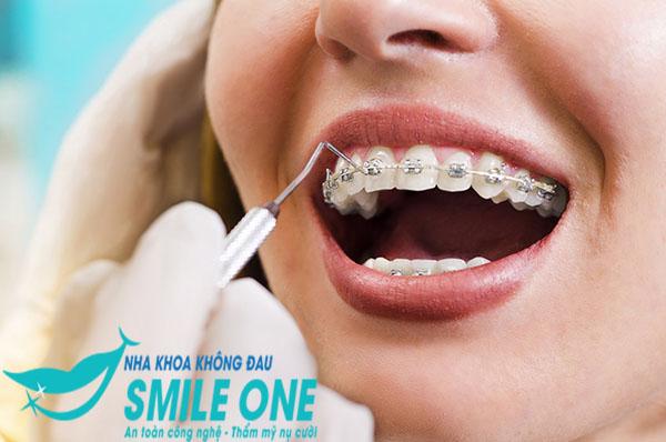 Niềng răng mắc cài titan - chỉnh nha hiện đại và hiệu quả