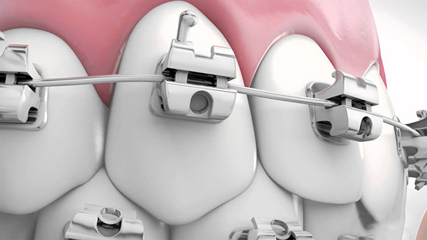 Tất tần tật về niềng răng mắc cài inox tự đóng