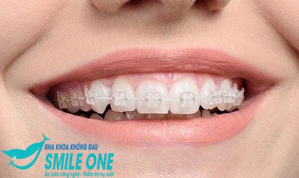 Review niềng răng mắc cài sứ có tốt không?