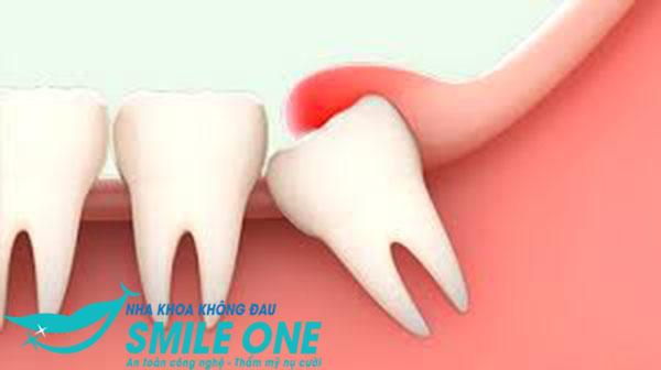 Xem ngay hậu quả không nhổ răng khôn là gì?