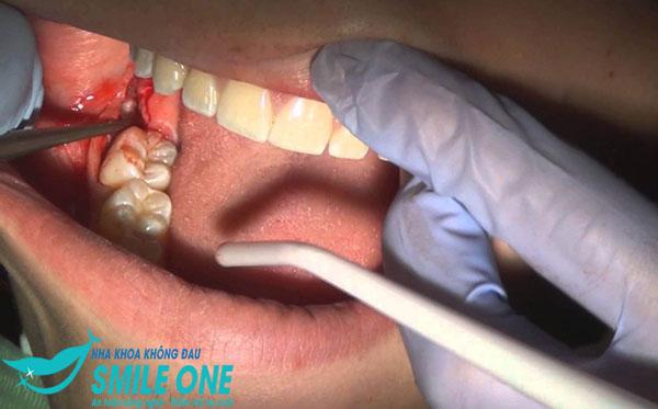 nhổ răng số 8 sưng bao lâu