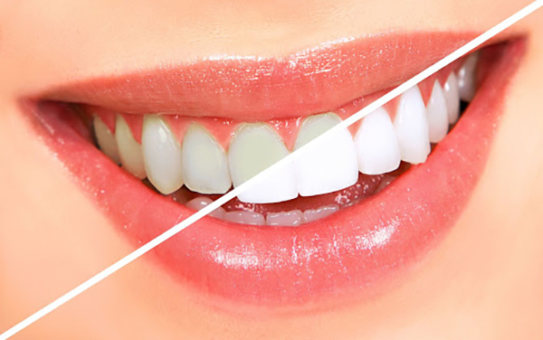 Phục hình răng sứ thẩm mỹ - Kỹ thuật có 1-0-2 tại Việt Nam