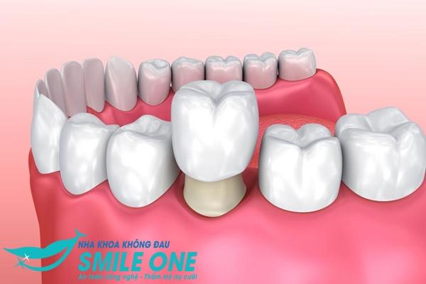 Thay răng sứ thẩm mỹ có đẹp vĩnh viễn như quảng cáo?
