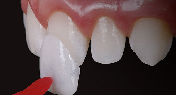 GIẢI ĐÁP] Răng sứ thẩm mỹ loại nào tốt nhất?