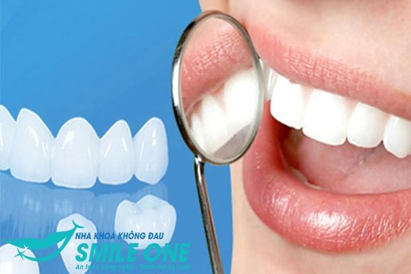 Mách Bạn] Làm răng sứ thẩm mỹ loại nào đẹp nhất?