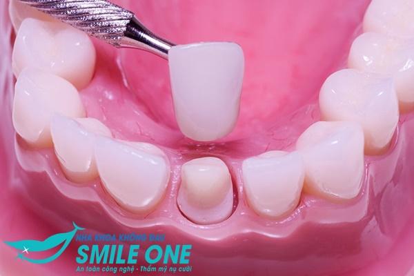 Review bọc răng sứ thẩm mỹ không đau tại Nha khoa Smile One